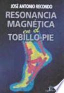 Resonancia Magnética en el Tobillo-Pie